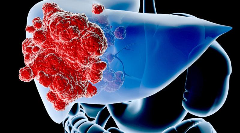 Best Artemisinin 100 mg на Doctor's Best пом,ага срещу рак на черния дроб и други органи