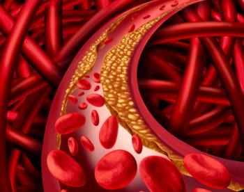 Best Lumbrokinase от Doctor's Best понижава холестерола и предпазва от атеросклероза.