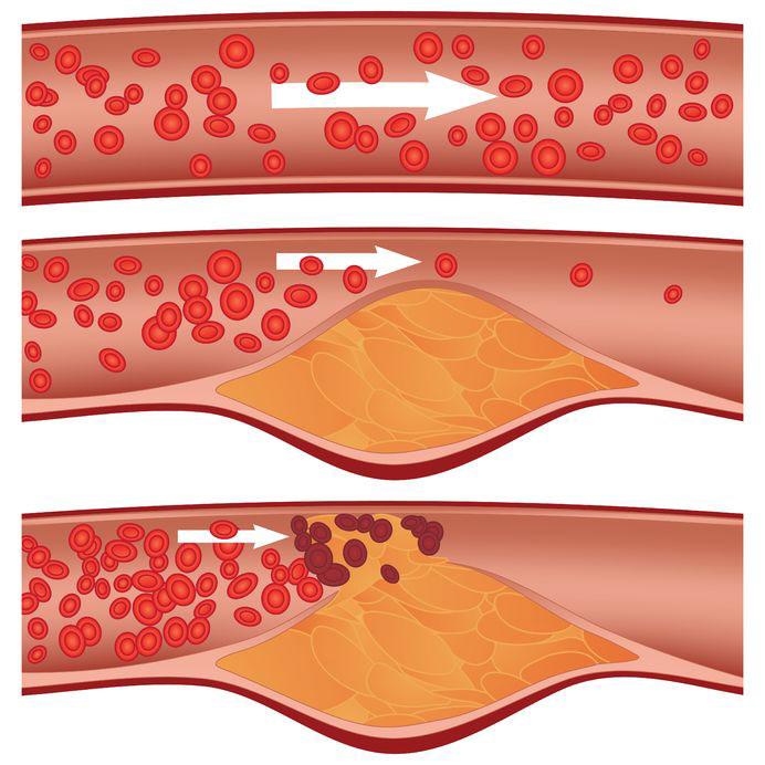 Serrapeptase 120000 SPU на супер цена намалява холестерола и предпазва от атеросклероза