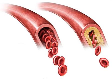 Gugulipid от Natrol понижава холестерола и предпазва от атеросклероза и тромбоза