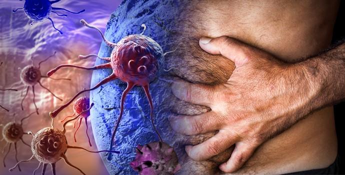 ULTRA B17 (Vitamin B17) 100 mg 50 capsules на PDM Pharmaceuticals се бори със затлъстяването и болките